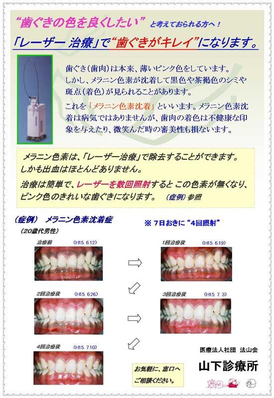 「レーザー治療」で歯ぐきがキレイに